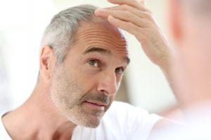 Formen und Ursachen des Haarausfalls